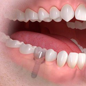 Quelle: Straumann_Implant-borne-single-tooth - Dres. Meisel-Nürnberg-Implantate-Einzelzahn