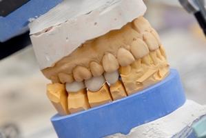 Quelle: Initiative proDente_Zahnlücke: Wie Zahnersatz entsteht