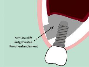 Sinuslift - Knochenaufbau | © megumi ito/shutterstock.com