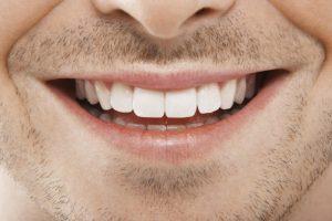 Keramik: Zahnersatz nach dem Vorbild der Natur | Zahnarzt Nürnberg