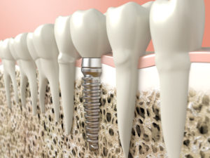 Sofortimplantation – Implantation nach Knochenaufbau| Zahnarzt Nürnberg