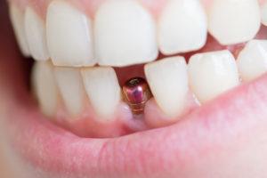 Gefahr für Zahnimplantate: Periimplantitis | Zahnarzt Nürnberg