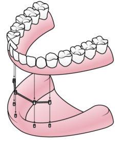 Eine komplette Zahnprothese auf nur vier bzw. sechs Implantaten | Zahnarzt Nürnberg