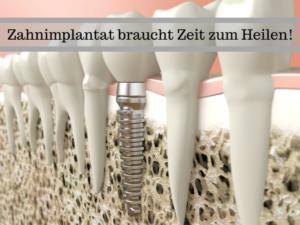 Weniger ist nicht immer mehr - Einheilzeit bei Zahnimplantaten | Zahnarzt Nürnberg